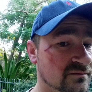 Very friendly person who doesn't deserve attack by magpie
